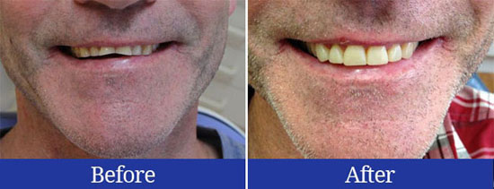 Before and after results of lengthening worn teeth